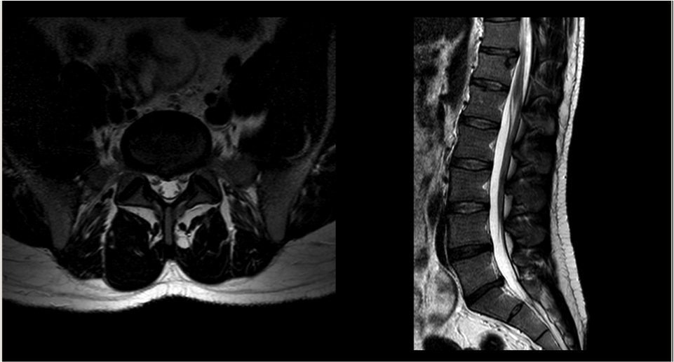 MRI 1 year later showing prolapse has resolved without surgery