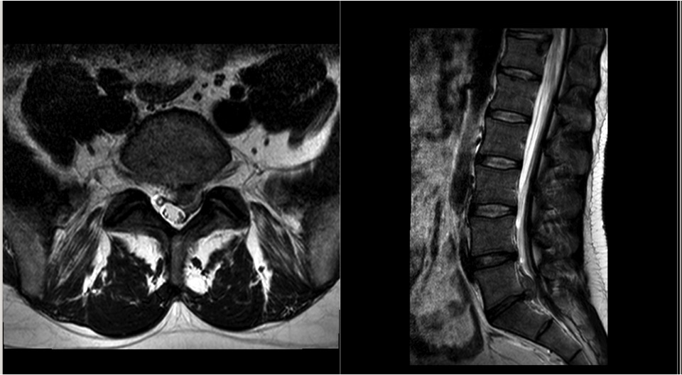 MRI showing initial disc prolapse