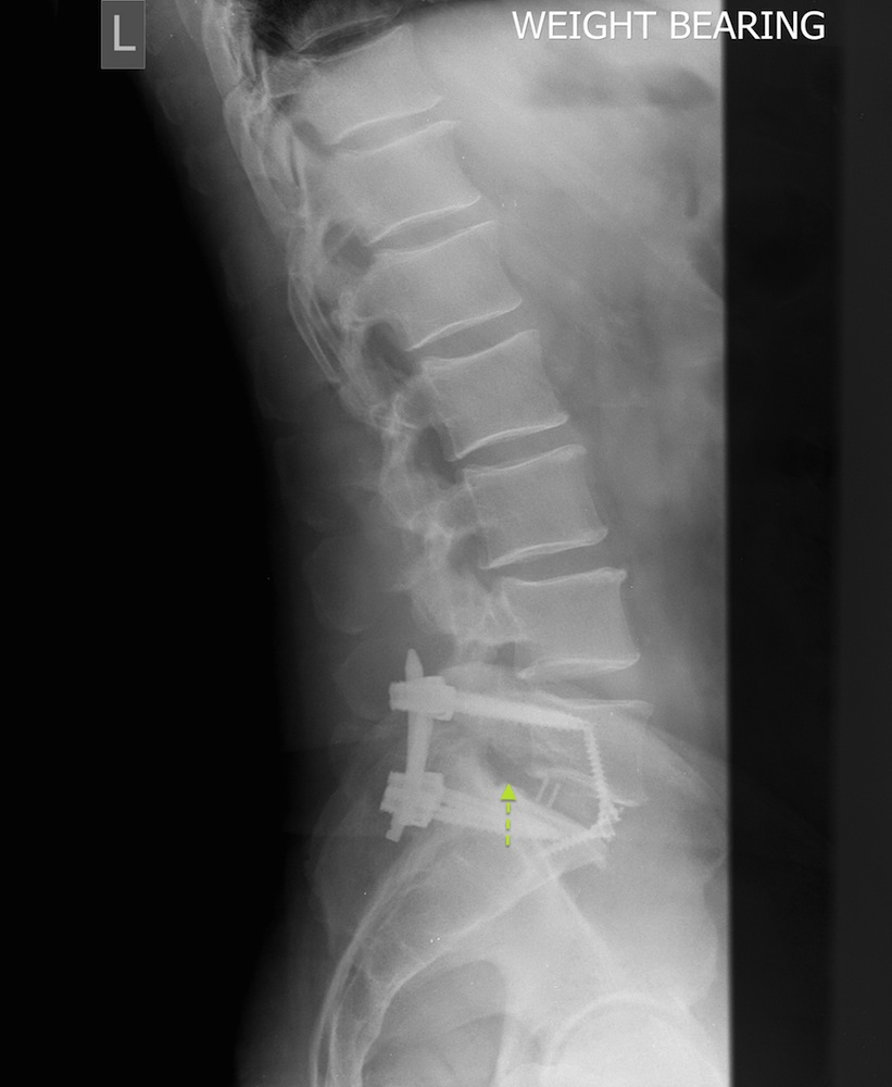 Postoperative Erect Lateral X-Ray Showing Anterior and Posterior Instrumented Fusion - a cage has been placed in the disc space to restore the foraminal height